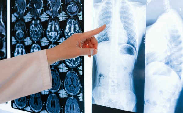 Brain and Spinal Cord Injury Attorney